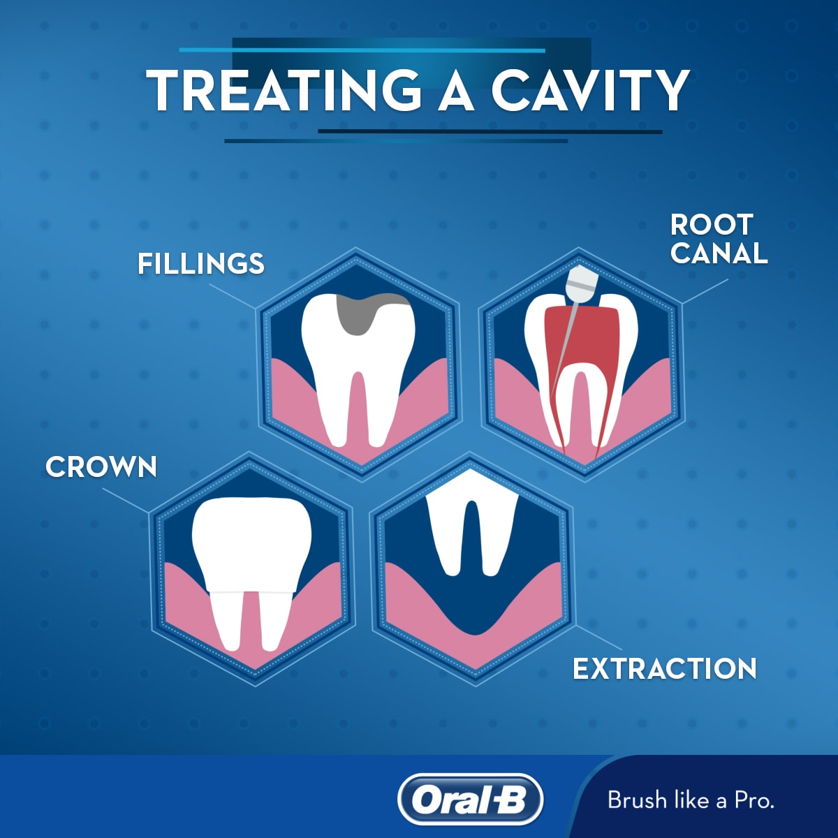 Treating a cavity