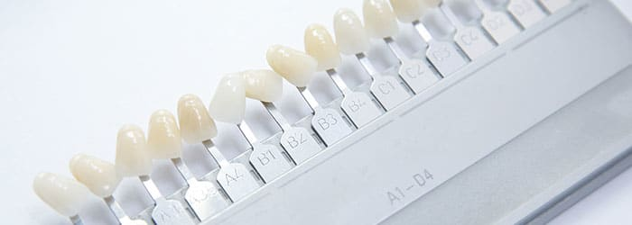 Dental Veneers - What to Expect