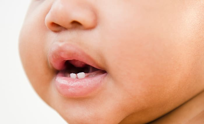Cavities and Tooth Decay in Baby Teeth