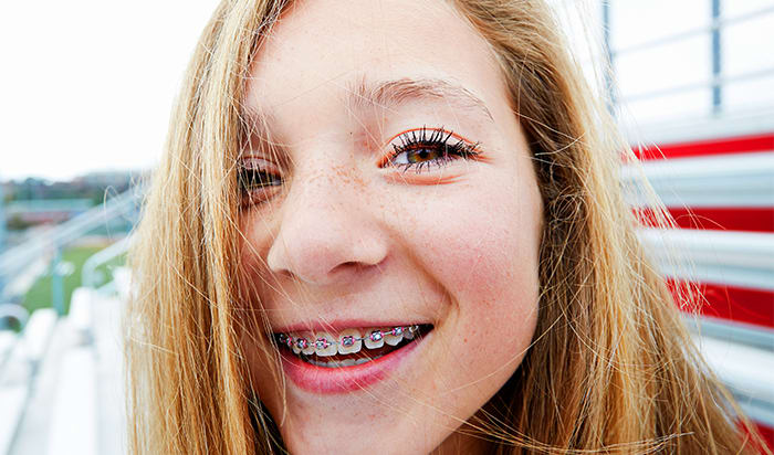 Child Wearing Braces and Smiling