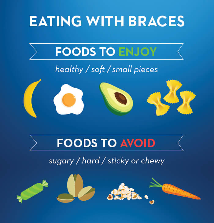 Foods to Enjoy or Avoid with Braces