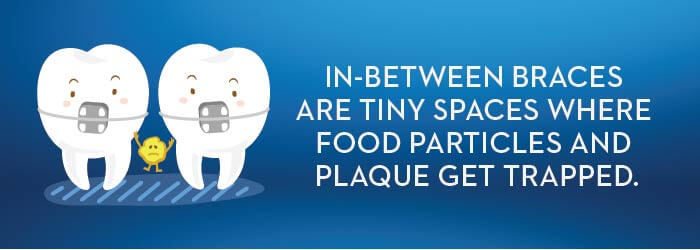 Food Particles Trapped In-between Braces