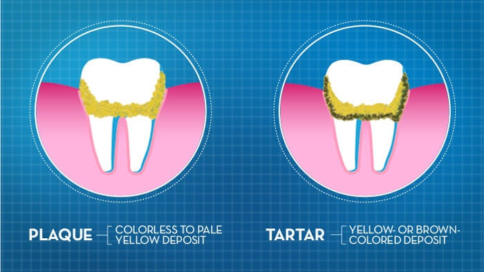 What is tooth plaque and tartar and how to remove them?