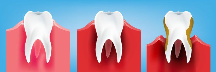 What are gingivitis and gum disease?