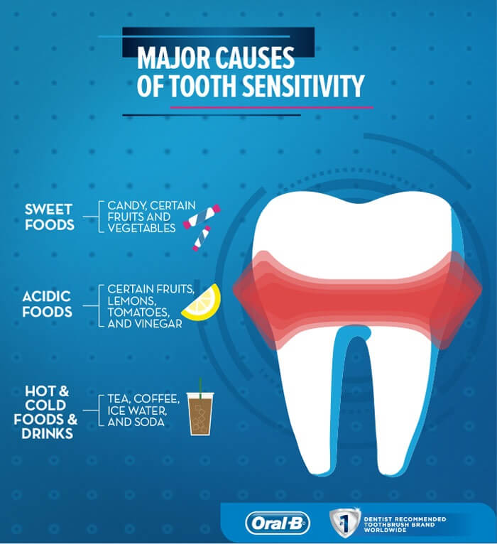 What is tooth sensitivity and exposed dentin 2