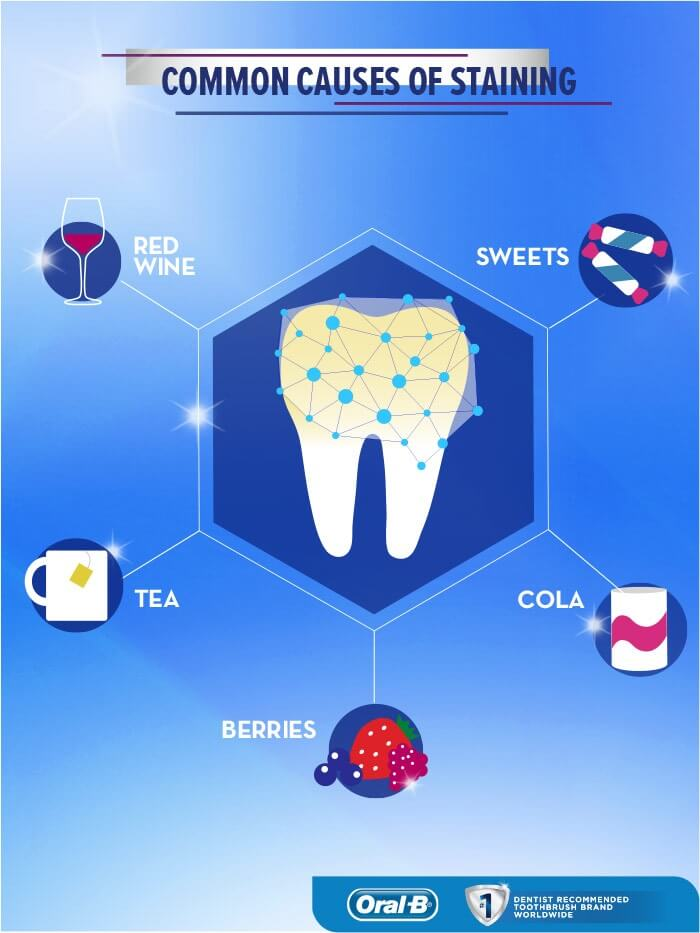 How teeth whitening works?
