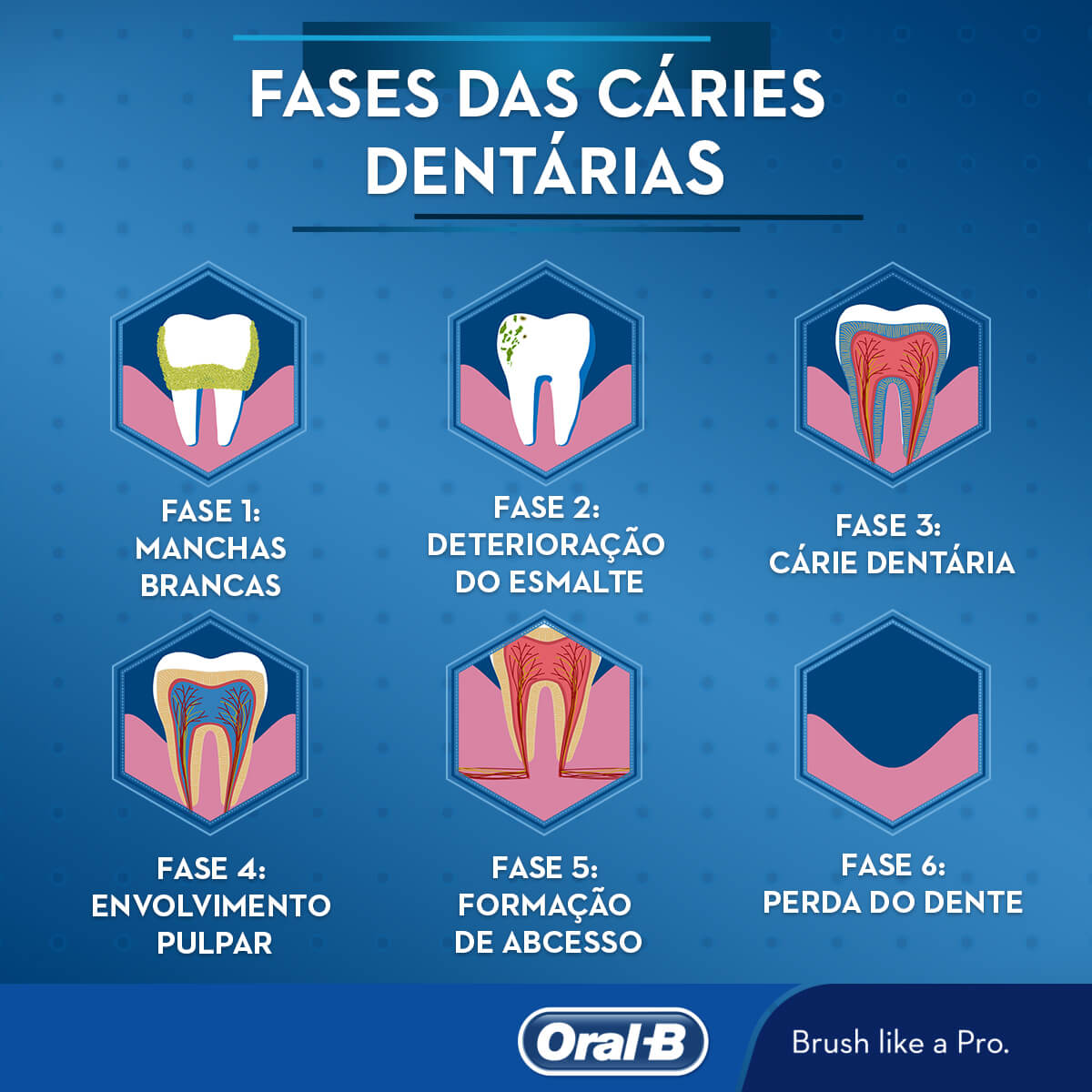 As fases das cáries dentárias