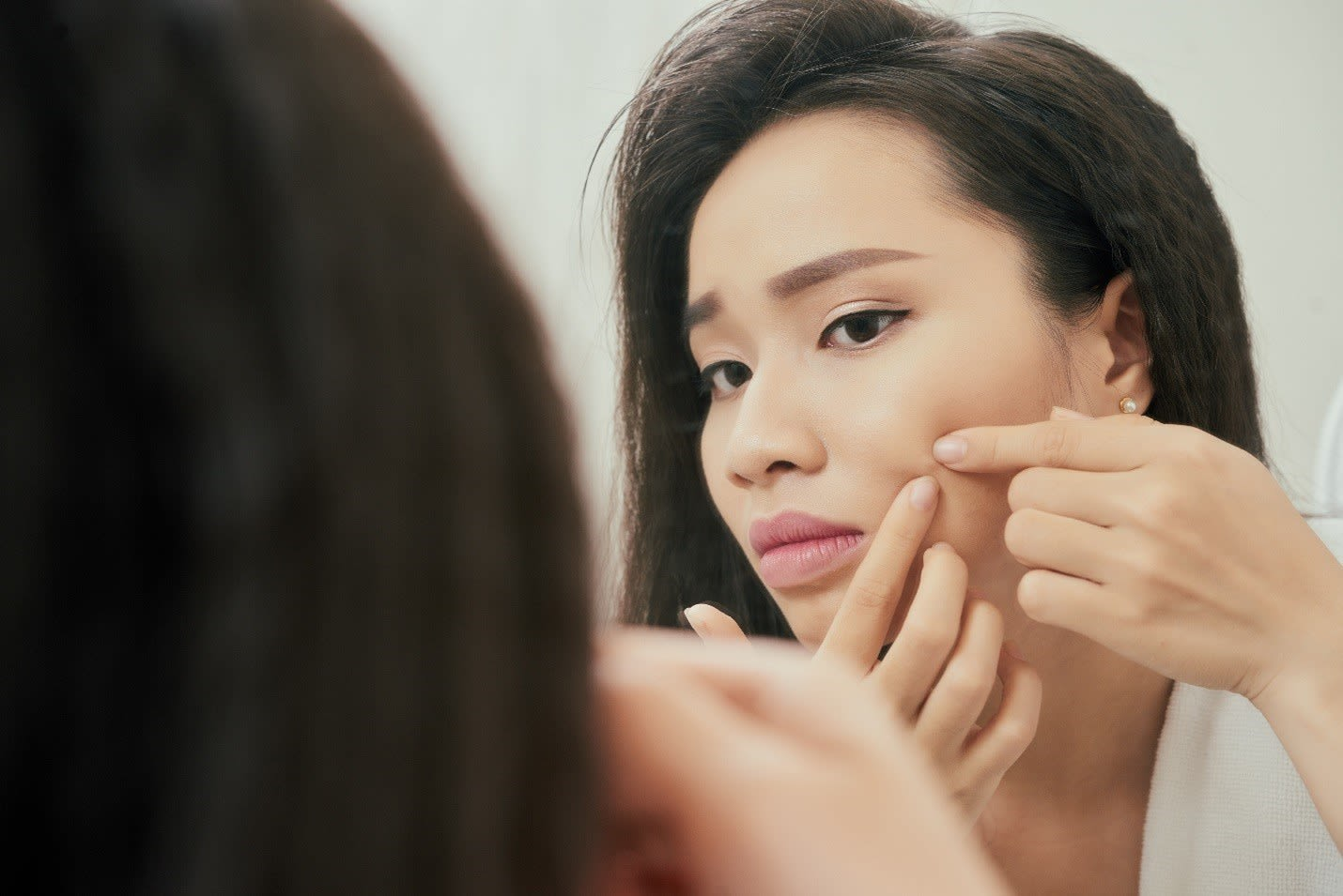How To Prevent Pimples: Tips To Eliminate Acne