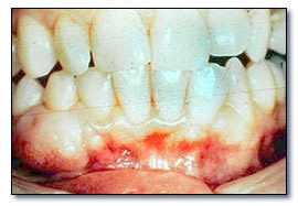 Peripheral ossifying fibroma