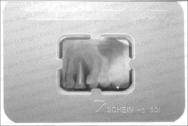 Xray showing tooth that lost bony support and needed replacement with implant.