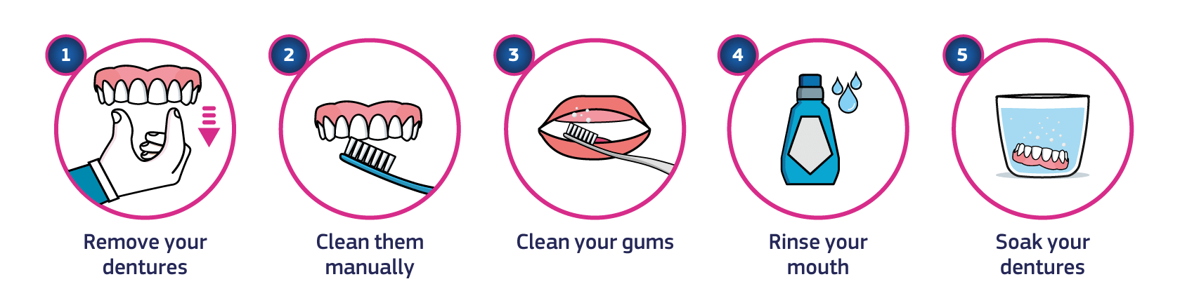 Infographic showing how to remove your dentures for the night: Step 1. Remove your dentures. Step 2. Clean them manually. Step 3. Clean your gums. Step 4. Rinse your mouth. Step 5. Soak your dentures.