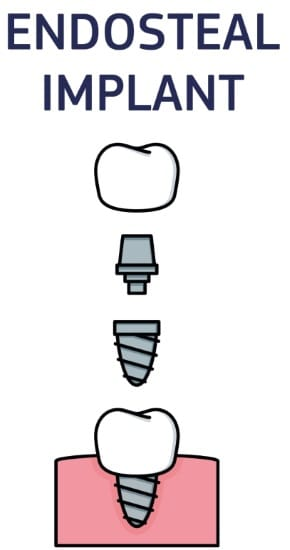 Infographic showing the components of an endosteal implant