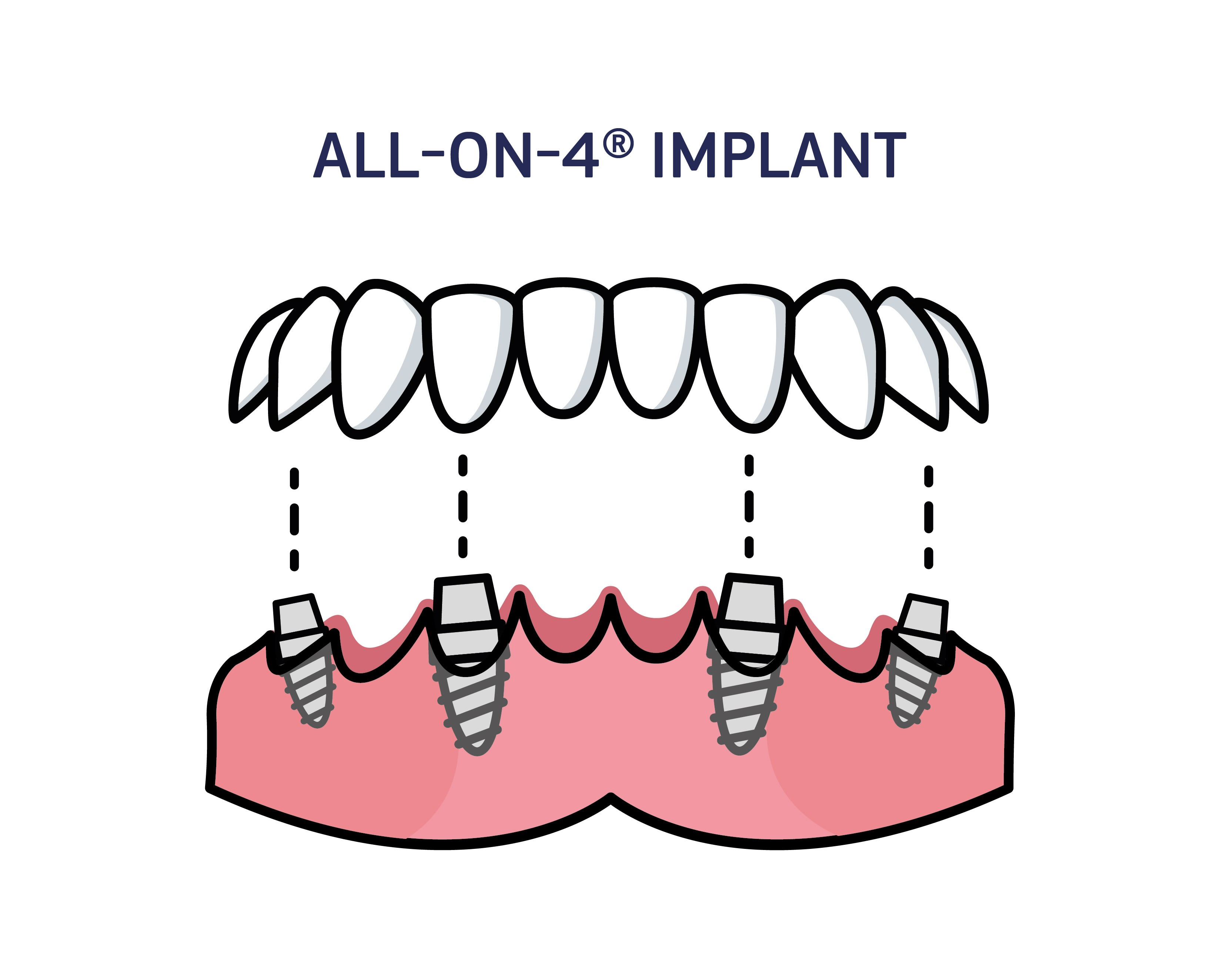 Infographic showing an all-on-4 implant and its components