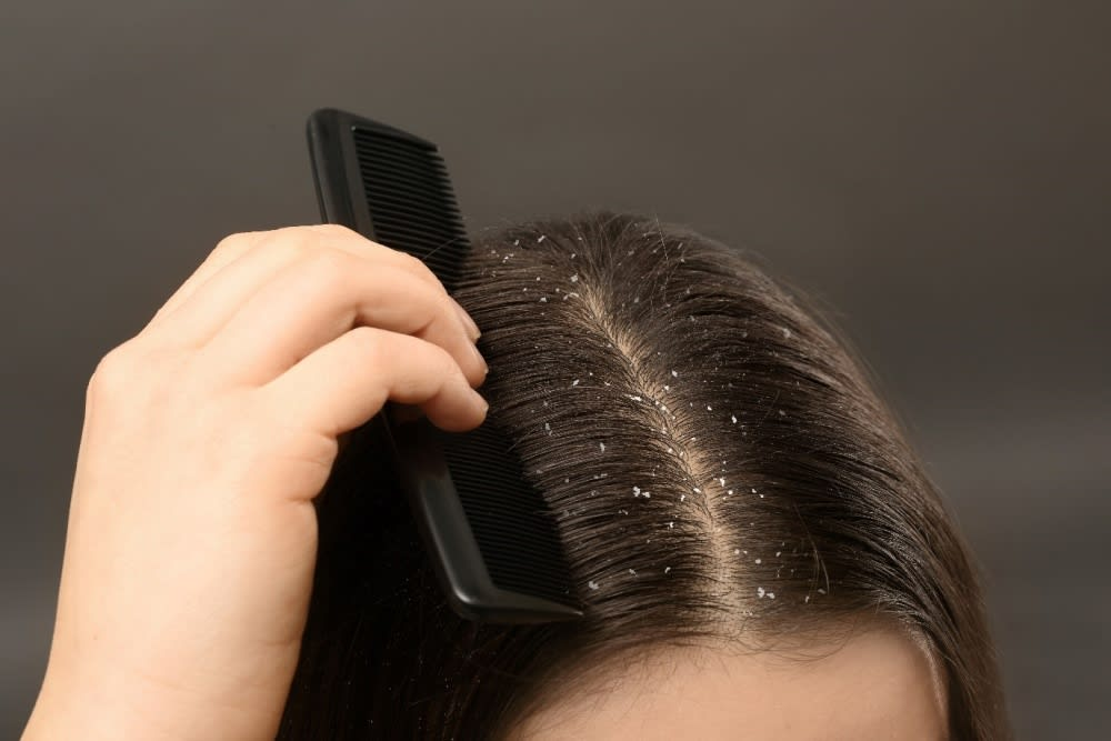 HOW TO PREVENT OILY SCALP AND DANDRUFF