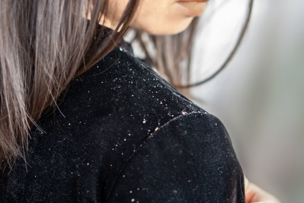 10 HAIR PROBLEMS AND HOW TO FIX THEM