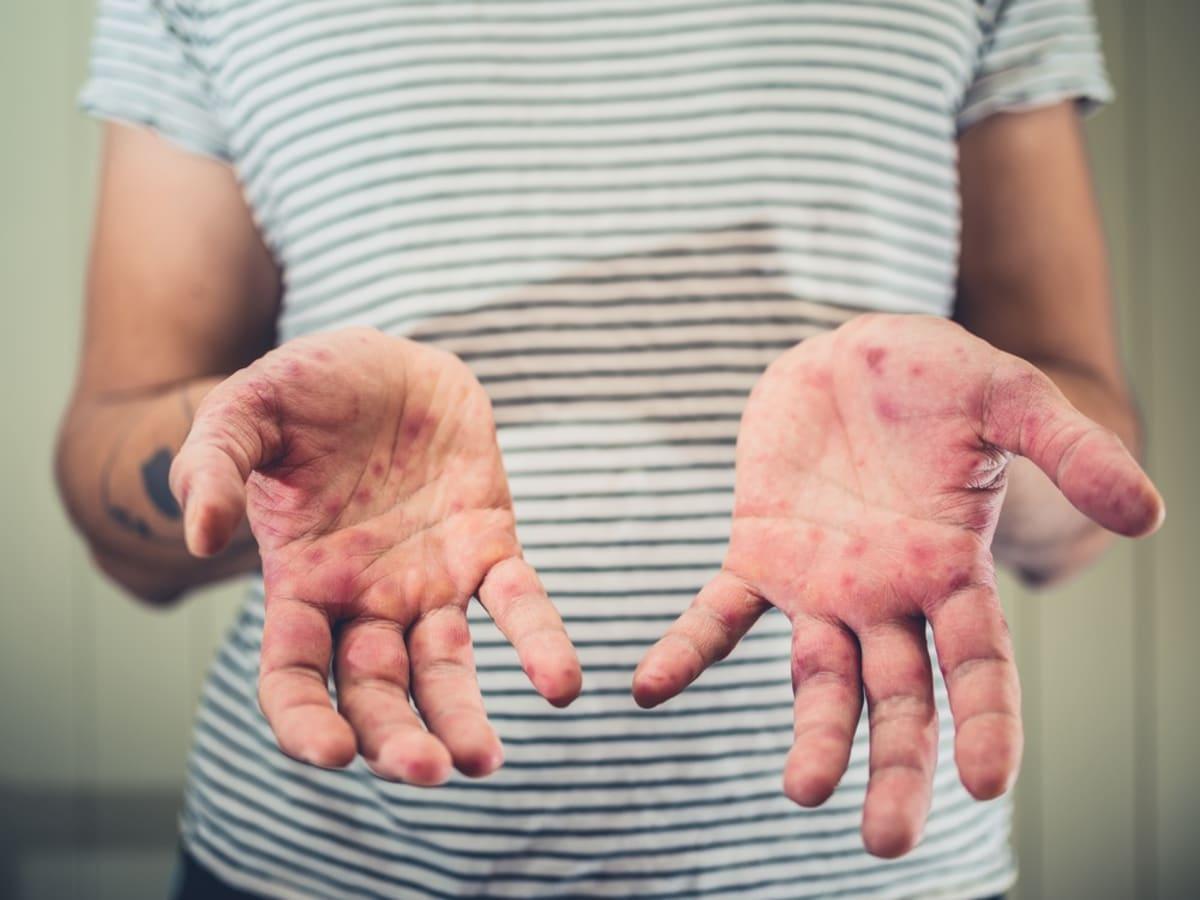 sarampión measles 5 cosas