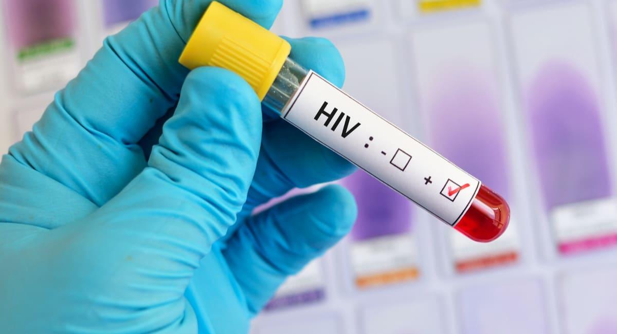 Día nacional de concientización sobre el VIH