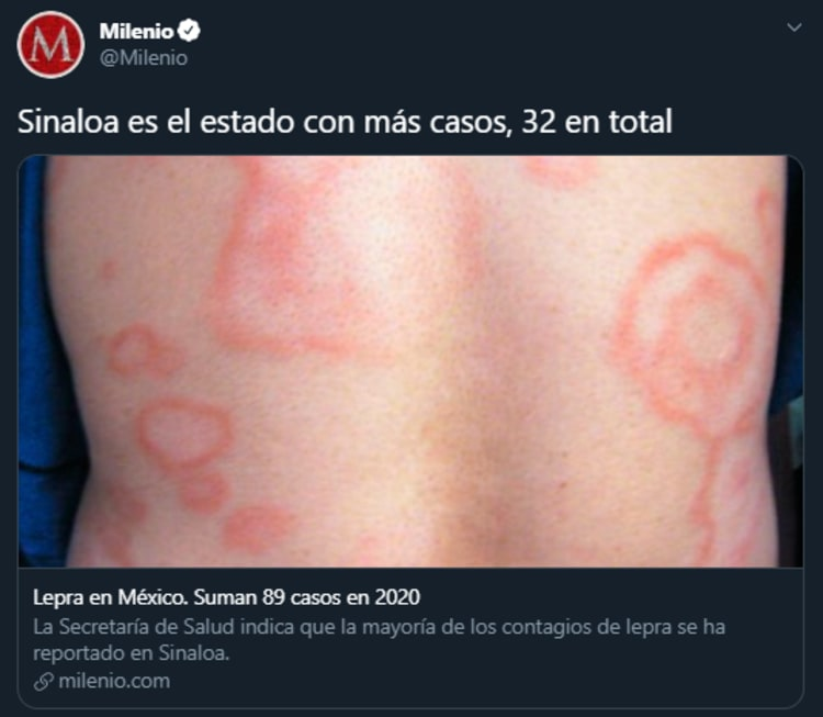 México Casos Lepra
