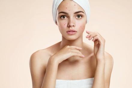 Remedios caseros y naturales para eliminar el acné (VIDEO)