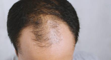 Caída del cabello… 15 tips para que ya no se caiga más