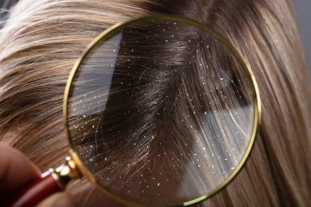 Caspa vergonzosa: El secreto natural para deshacerte de ella para siempre