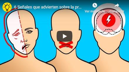Alerta derrame cerebral (stroke): 6 señales de que puedes sufrir uno (VIDEO)