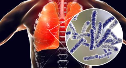 Cuatro muertos y más de 130 enfermos por enfermedad del Legionario en Carolina del Norte