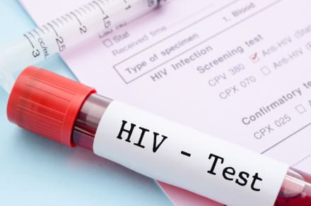 Dónde, cómo y cuándo hacerte la prueba del VIH en Georgia