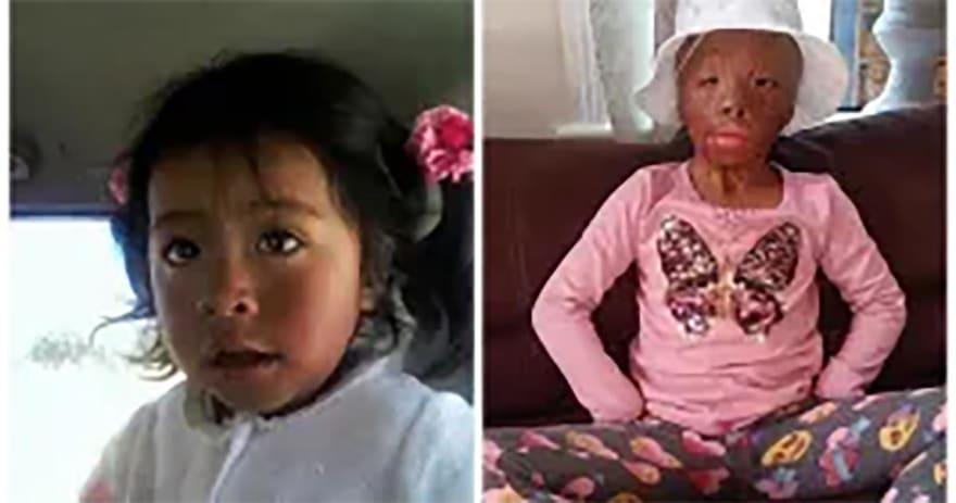 EN VIVO: Niña de 5 años sufre serias quemaduras y requiere ayuda para tratamiento