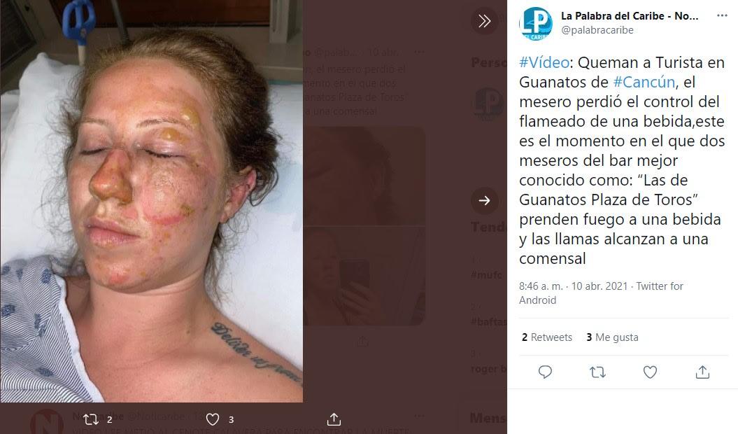 Celebración termina en tragedia, le queman la cara a mujer