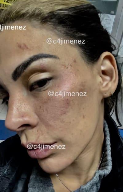 Eleazar Gómez agresión novia
