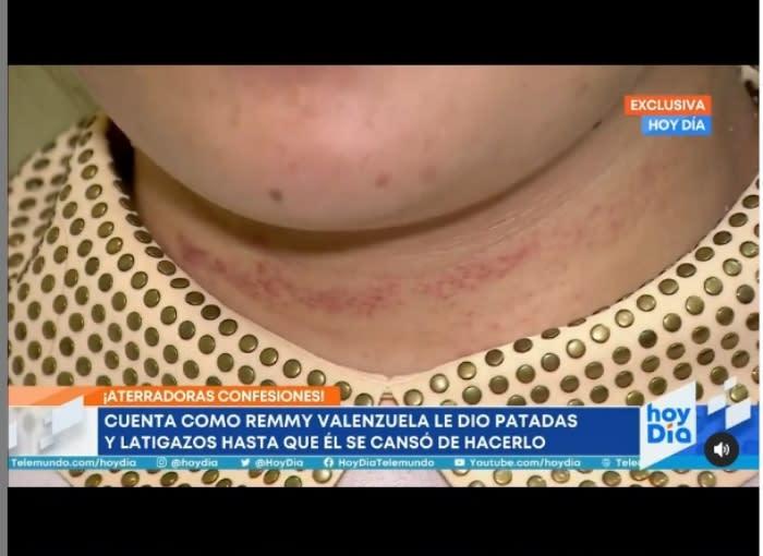 Katy Araceli Víctima Remmy Valenzuela cuenta la verdad 4