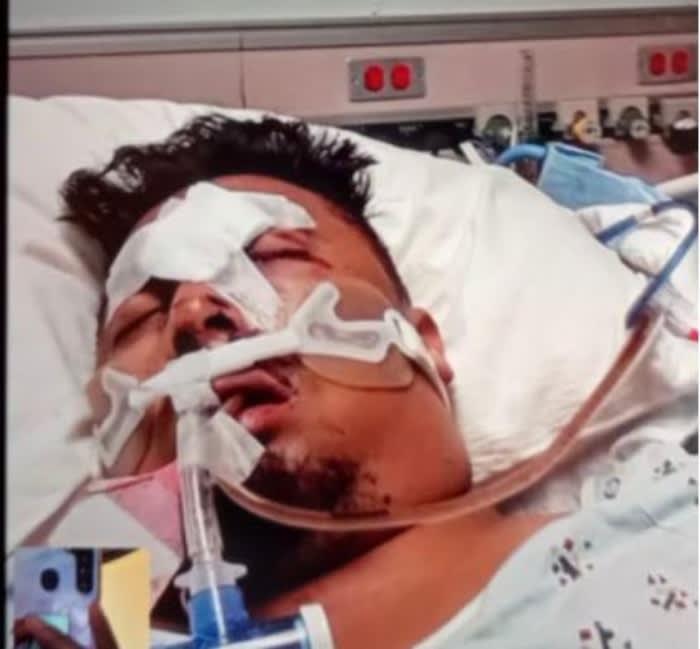 Sobreviviente ataque Georgia Elcías Hernández Ortiz 2
