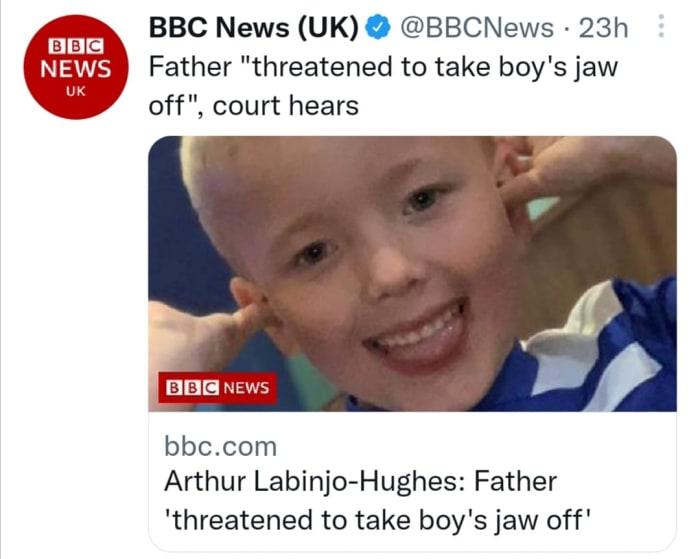 Papá mata hijo mandíbula