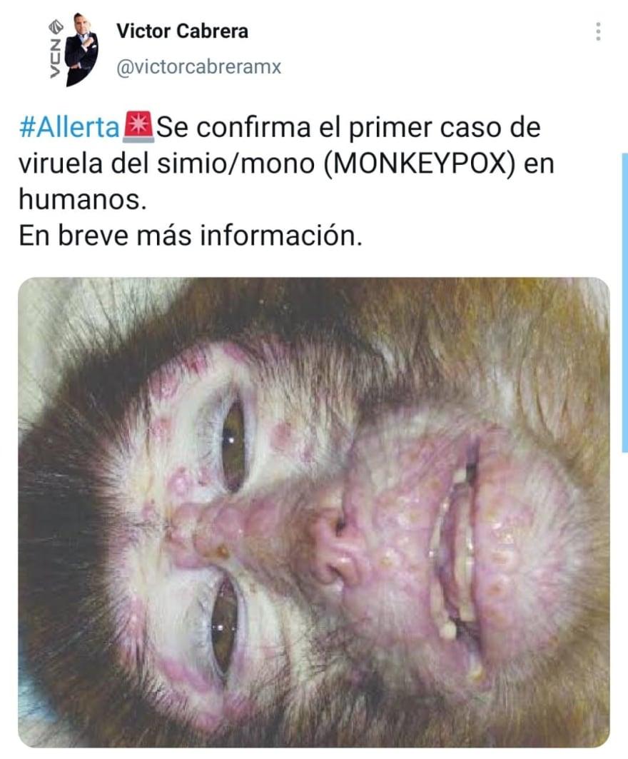 Confirman cuándo llegó el paciente con la viruela del mono