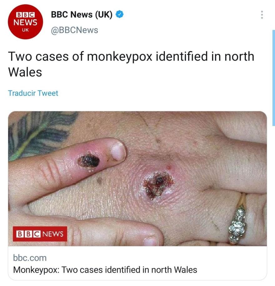 Buscan prevenir el contagio de la viruela del mono o Monkeypox