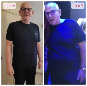 קובי לפני ואחרי תהליך ההרזיה במותר לי