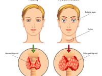 Foods for Hyperthyroid Patients