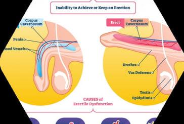 Erectile dysfunction among men due to coronavirus infection is real - Urologist