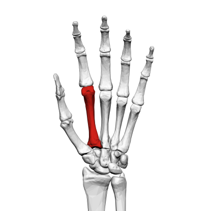 15. Which bone is this?