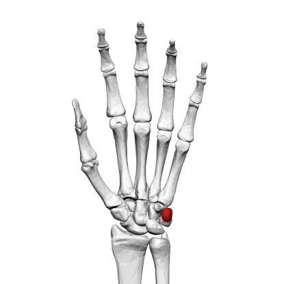 33. Which bone is this?