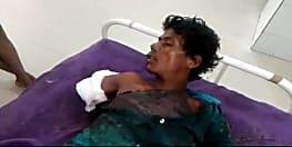 लूट का विरोध करने पर युवक का दोनों पैर तोड़ रेलवे लाइन पर फेंका, कटा हाथ