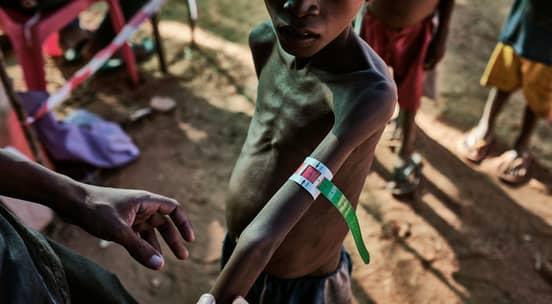 Foto av et tynt, underernært barn på Madagaskar