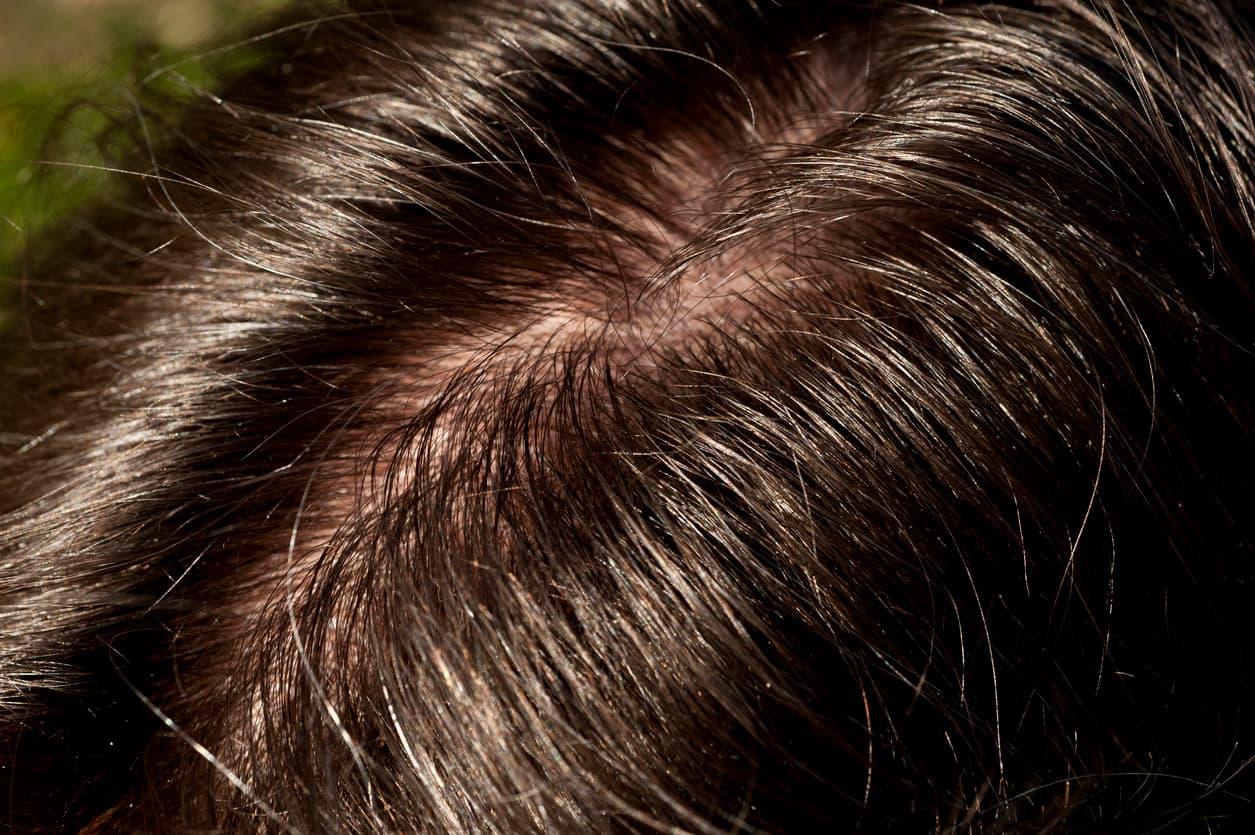 Sliter du med fett hår?