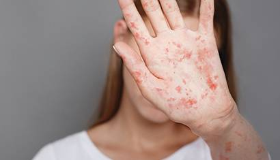 2019 June Feature Measles The Childhood Scourge Is Back 410