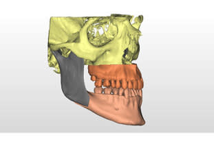 Digital Workflow for Maxillofacial Surgery