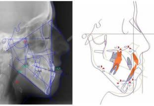 Cefalometria e VTO 2D