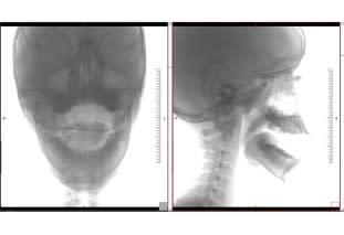 Radiologia dinamica