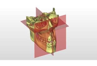 Cefalometria 3D
