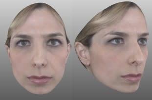Scansione del viso